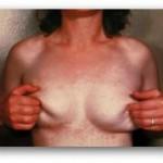 Tinea Versicolor Woman