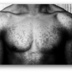Tinea Versicolor Black Man