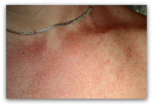 Pityriasis versicolor | DermNet New Zealand