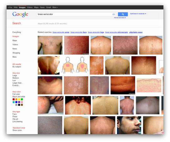 Tinea Versicolor Google Search